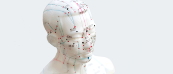 Image - Electroacupuncture for the Treatment of Neurodegenerative Diseases